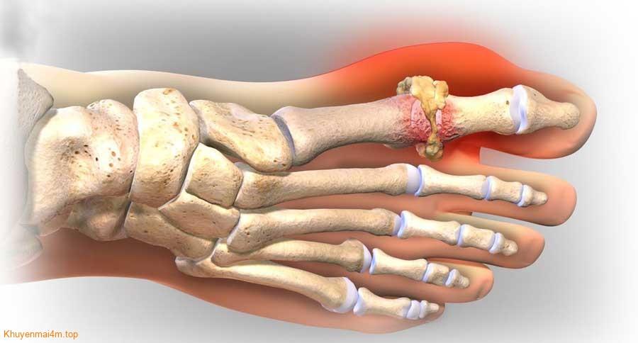 Tổng hợp những nguyên nhân và triệu chứng bệnh Gout - 2