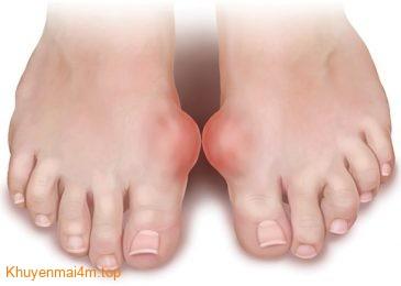 Tổng hợp những nguyên nhân và triệu chứng bệnh Gout