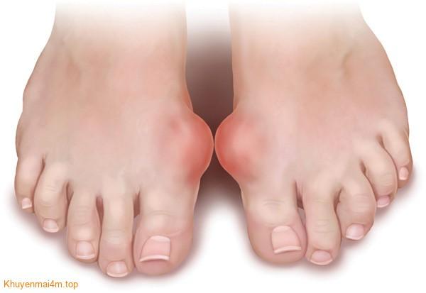 Tổng hợp những nguyên nhân và triệu chứng bệnh Gout - 1