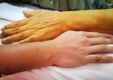 Những dấu hiệu của bệnh gan bị nhiều người bỏ qua